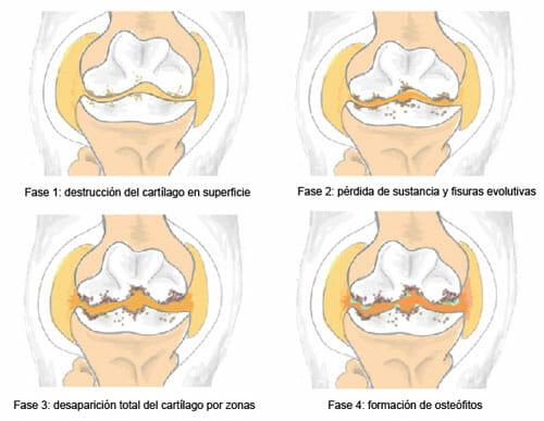 Artrosis periférica
