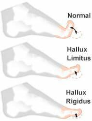 Hallux limitus - Pies