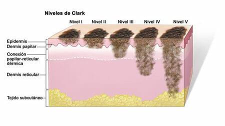Melanoma - Niveles de Clark