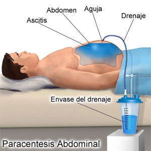 Paracentesis como tratamiento de la ascitis