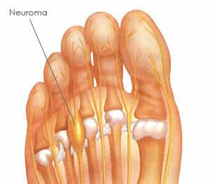 Anatomía de un pie con neuroma
