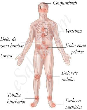 Síntomas del Síndrome de Reiter