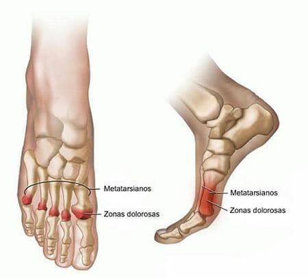 Zonas dolorosas de la metatarsalgia