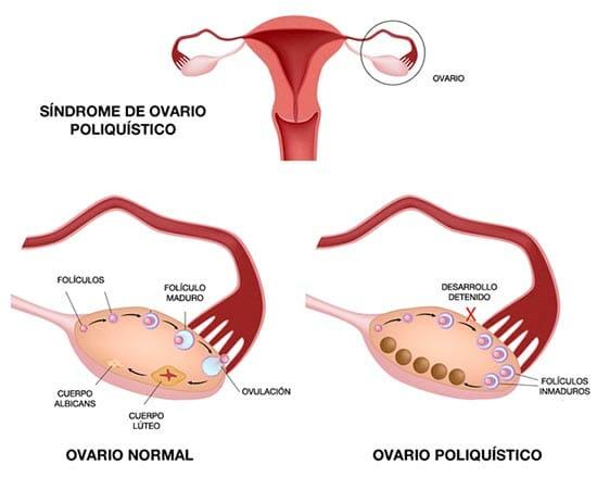 Causas del síndrome del ovario poliquístico