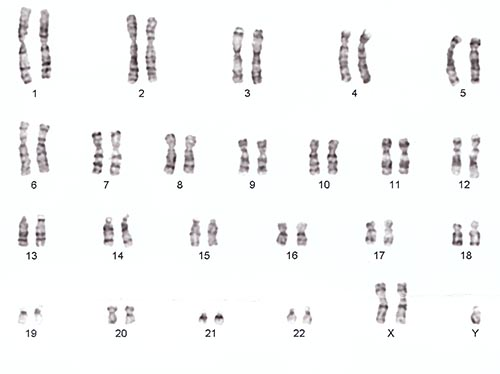 Cromosoma XXY en el síndrome de Klinefelter