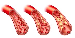 dislipemia y grasas sanguíneas