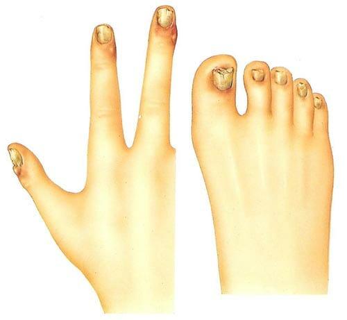 Síntomas de la onicomicosis