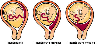 Tipos de placenta previa