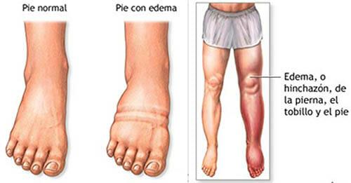 Síntomas del linfedema