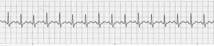 Gráfico de la taquicardia sinusal