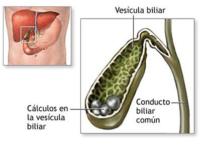 Causas de la litiasis biliar