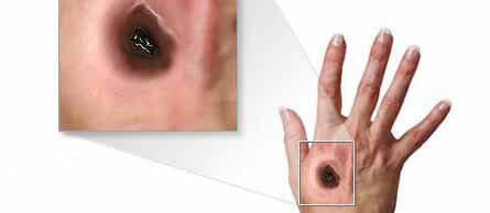 Síntomas del carbunco