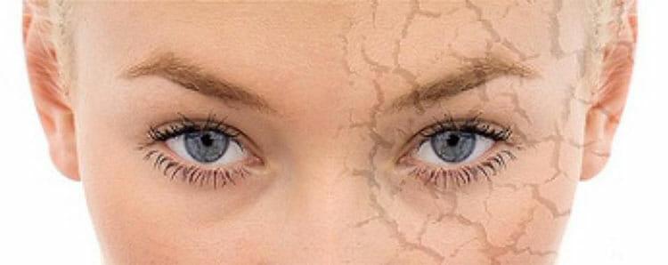 Aceites esenciales para piel seca
