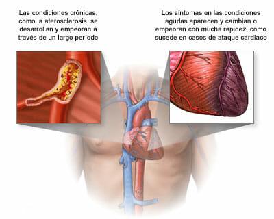 Causas del cor pulmonale