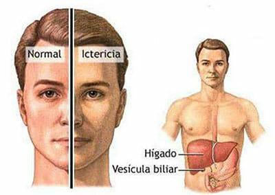 Causas de la encefalopatía hepática