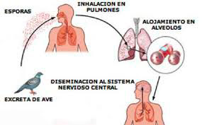 Causas de la psitacosis
