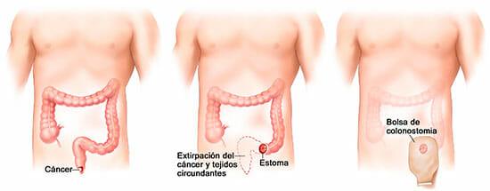 Colostomía: tratamiento para cáncer de ano