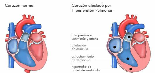 Corazón afectado por hipertensión pulmonar