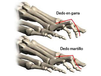 Dedos en garra y en martillo