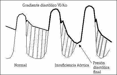 Diagnóstico de la insuficiencia aórtica