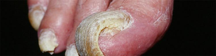 Diagnóstico de la onicogrifosis