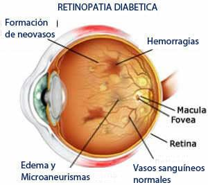 Ojo con retinopatía diabética