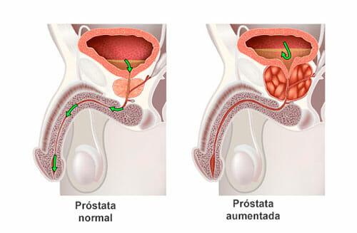 Síntomas de la hiperplasia benigna de próstata