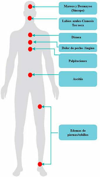Síntomas de la hipertensión pulmonar