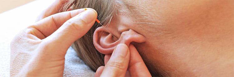 La acupuntura para adelgazar no produce dolor alguno