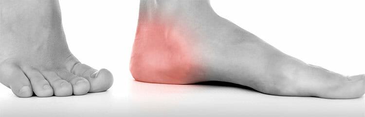 Tratamiento del espolón calcáneo