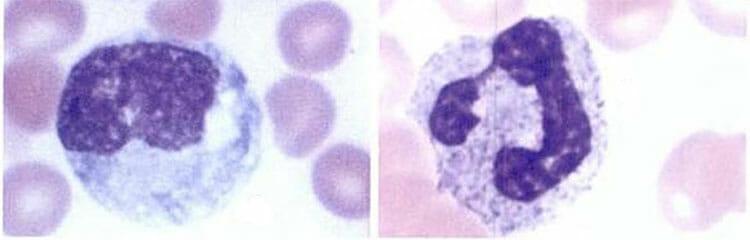 eosinofilos altos y leucocitos bajos