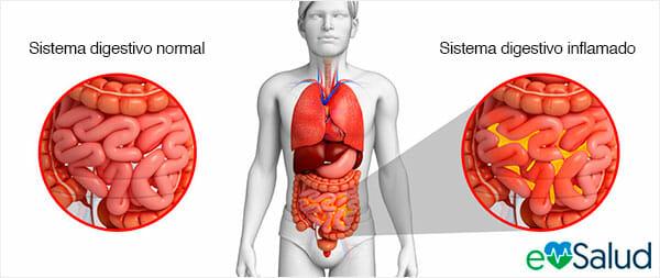 Causas de la peritonitis