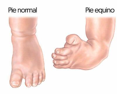Síntomas del pie equino