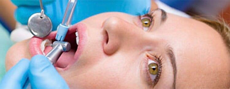 Cuánto dura una endodoncia