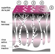 Evolución del herpes zóster