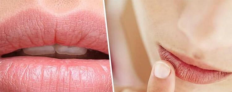Cuidados esenciales para sanar y proteger los labios