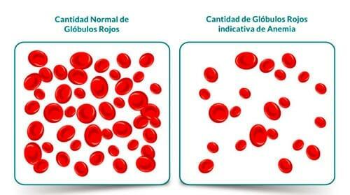 Anemia: hemoblogina baja