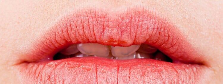 Consejos de hidratación para labios secos