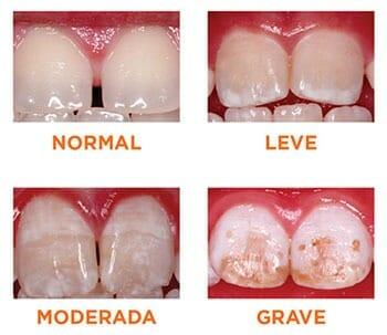 Tipos de fluorosis