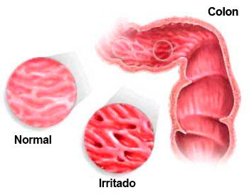 Causas del colon irritable