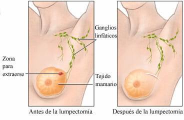Antes y después de una lumpectomía