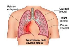 Síntomas del neumotórax