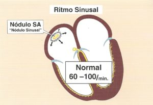 definicion del ritmo sinusal