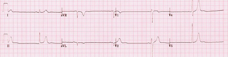 Electrocardiograma para detectar bradicardia sinusal