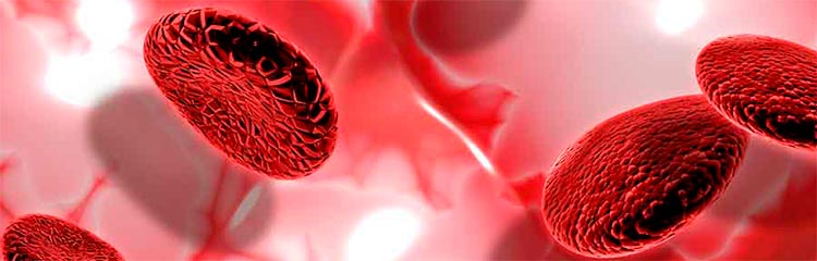 Plaquetas bajas en examen de sangre