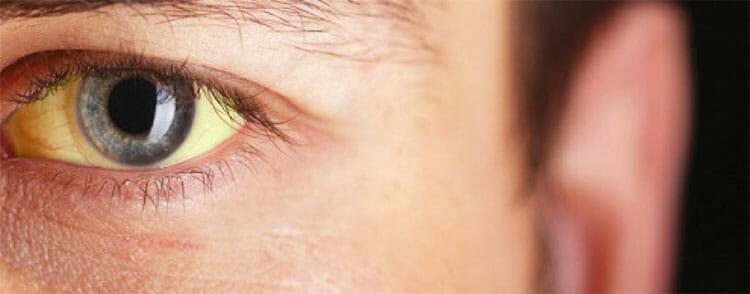 bilirrubina alta consecuencias en adultos