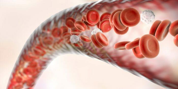 Hierro y alto el ferritina normal tener