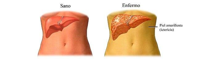 Síntomas de la bilirrubina alta