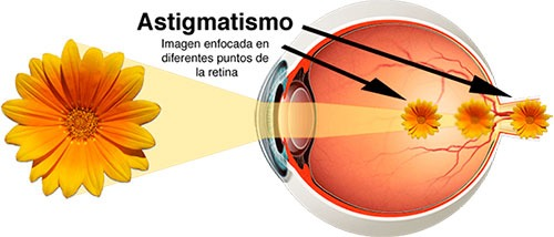 Ojo con astigmatismo