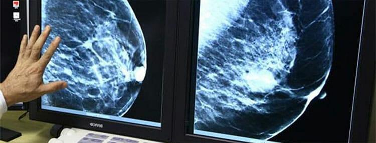 Resultado de la mamografía